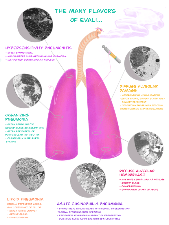 """Illustration: The many radiographic 'flavours' of EVALI; Posted by Jon-Emile S. Kenny MD [@heart_lung] with illustration by Carla M. Canepa MD [@_carlemd_] on Oct. 29, 2019 , """"Vaping Associated Lung Injury-Part 1"""""""